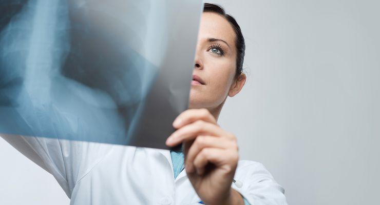 Frau untersucht Röntgenaufnahme vom Brustkorb mg_atemwegserkrankungen.jpg