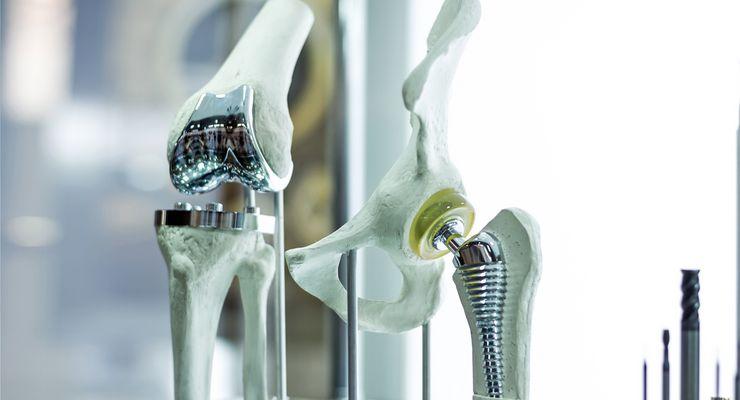 Modell mitImplantaten für Hüfte und Knie ml_implantat.jpg