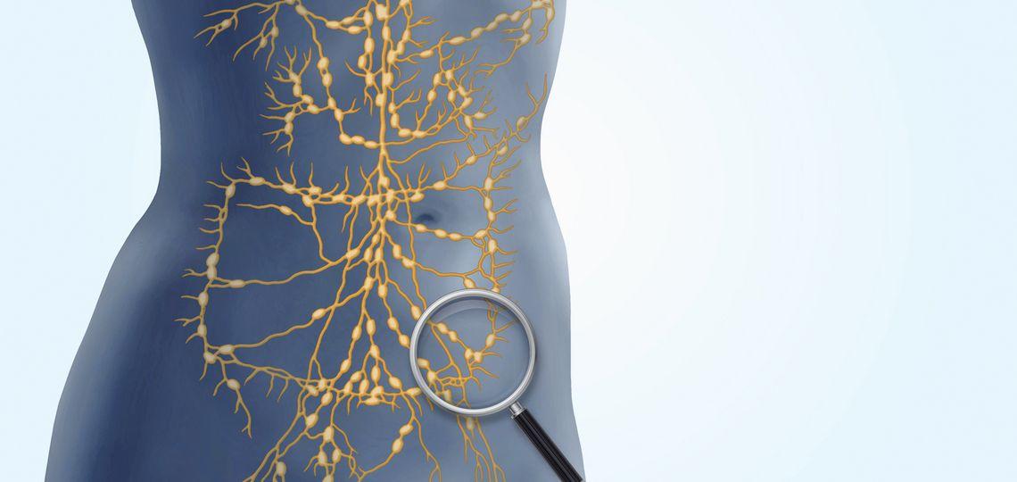 Schematische Darstellung des Lymphatischen System im Bauchraum