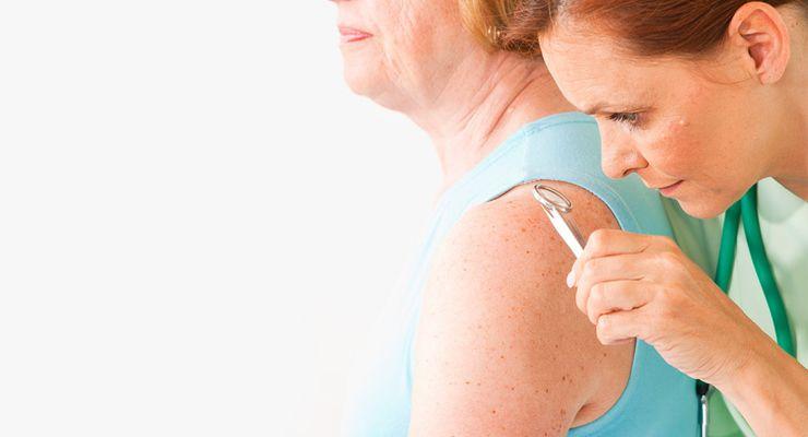 Ärztin untersucht die Haut einer Patientin ml_hautkrebsscreening.jpg