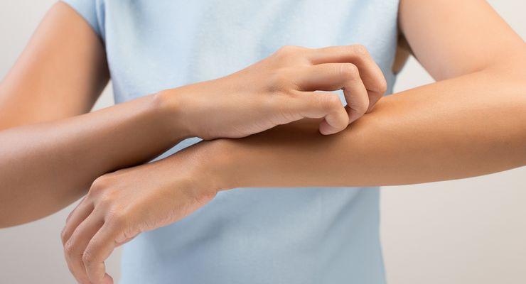 Frau kratzt sich aufgrund eines Mückenstichs am Arm mg_mueckenstiche.jpg