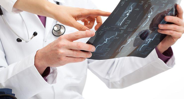 Ärzte betrachten ein Röntgenbild ml_zweitmeinung.jpg