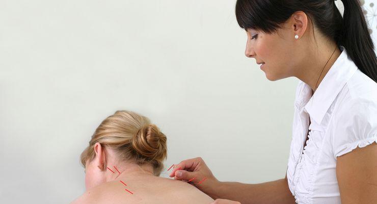 Ärztin führt Akupunktur an Patientin durch ml_akupunktur.jpg